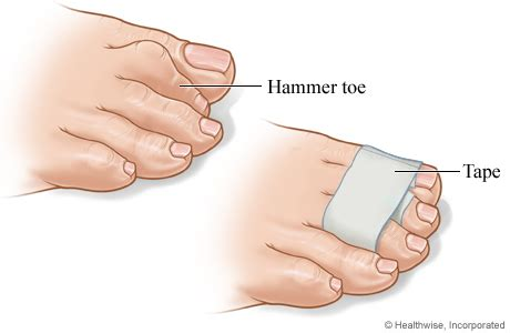 wrapping a hammer toe of michigan health system