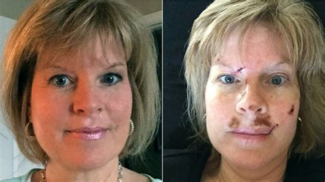 tanning bed before and after woman shares skin cancer ordeal warns about tanning beds