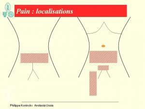 l ovulazione porta dolori prima visita per l endometriosi mondoginecologico