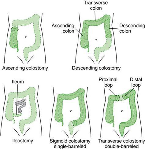 Colostomy Stool Consistency by O Key