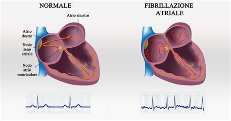 extrasistole a letto quando il cuore batte in maniera caotica la fibrillazione