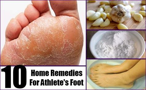 1000 ideas about foot fungus treatment on
