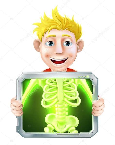 imagenes animadas rayos x ilustraci 243 n de rayos x archivo im 225 genes vectoriales