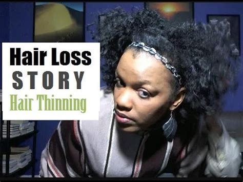 natural hairstyles for thin and balding hair for black women thinning hair loss story hair shedding thin natural