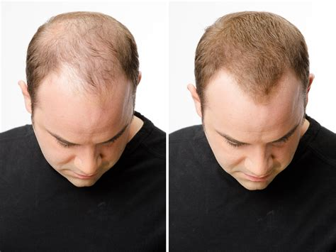 before and after thinning mens haircut help with thinning hair case studies