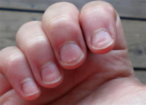 Finger Nails by Image Gallery Scleroderma Fingernails