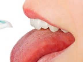 cancer en la lengua tongue cancer signs and symptoms oral health ygoy