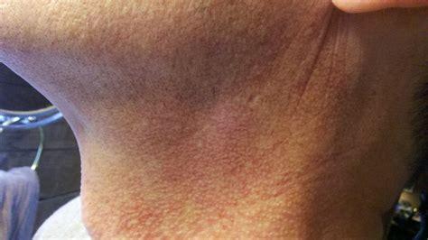 rash on neck rash around neckline pictures photos