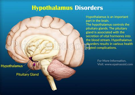 Foxx Has Surgery For Gland Problem by Hypothalamus Disorders Causes Symptoms Treatment Prognosis