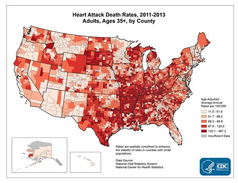 signs a is dying of age the signs and symptoms of a attack fact sheet data statistics dhdsp cdc