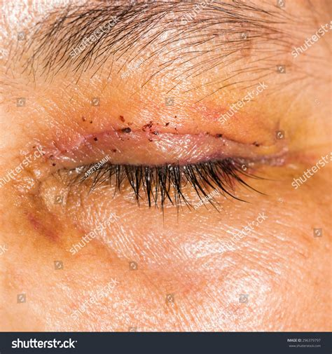 footprints sand along suoi stock photo 546483796 post blepharoplasty during eye examination stock photo 296379797