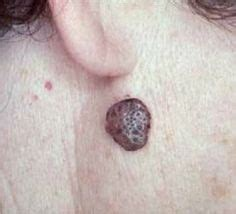 1000 images about skin tags moles warts age spots on