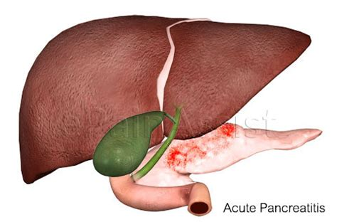 pancreatitis recovery time chest gas belching help heal your gallbladder