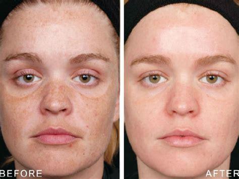 Roc Repairing Lip Care 4 9g