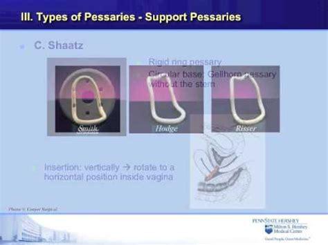 Shelf Pessary Technique the pessary for prolapse an educational