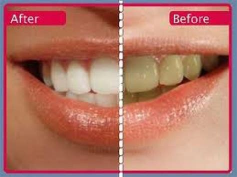 Pemutihan Gigi Di Jakarta Smile pemutihan gigi jakarta di klinik orange dental