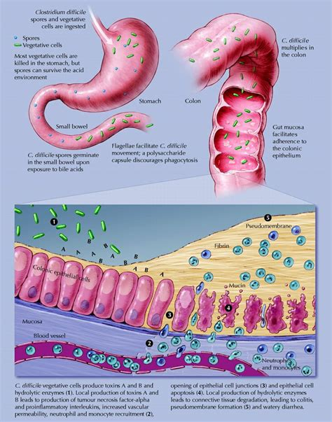 can dogs get c diff 9 best clostridium difficile images on c diff gut bacteria and hospitals