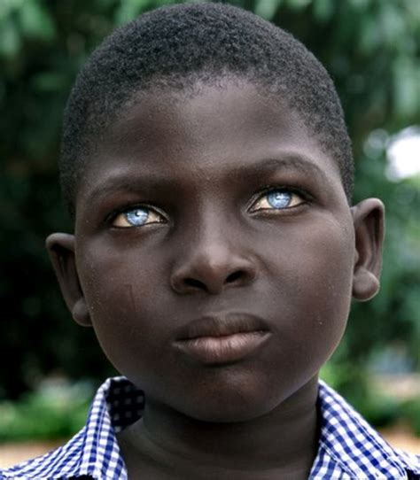 187 black people with blue eyes natural phenomenon or