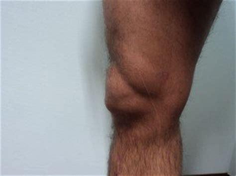 knie bluterguss innen bursite du genou sympt 244 mes et traitement