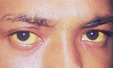 hepatitis c and hair color medical pictures info yellow sclera