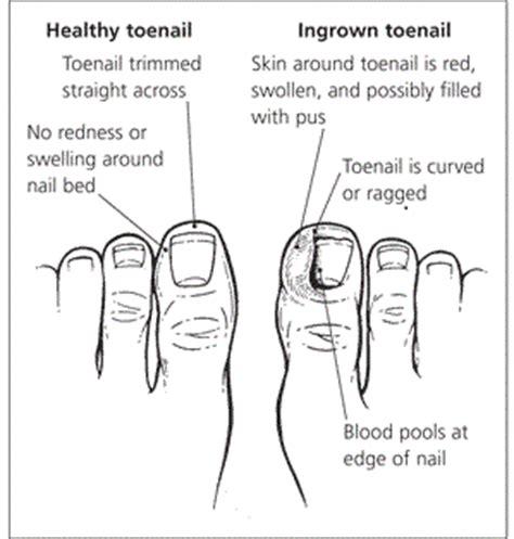 toe diagram ingrown toenail diagram ingrown toenail