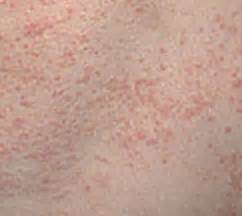 Salep Calamine 10 penyakit kulit menyerang pada anak anak gejala cara