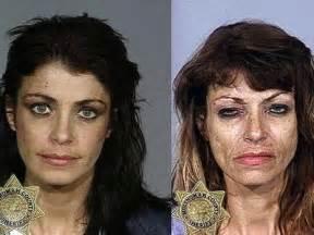heroin bilder vorher nachher ver 228 ndert sich das aussehen bei heroin abh 228 ngigen drogen