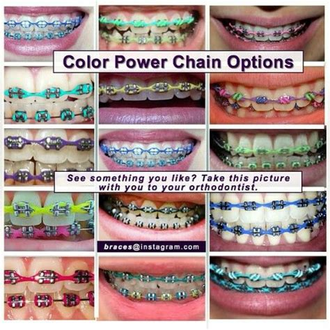 color power chains braceface colors and chains