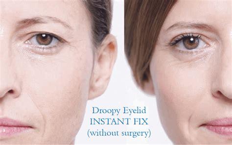 Detox Drooping Eye by Best Droopy Eyelid Fix No Surgery Eye Secrets Eyelid