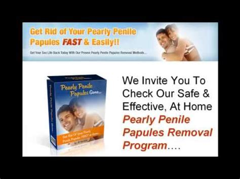 pearly papules removal
