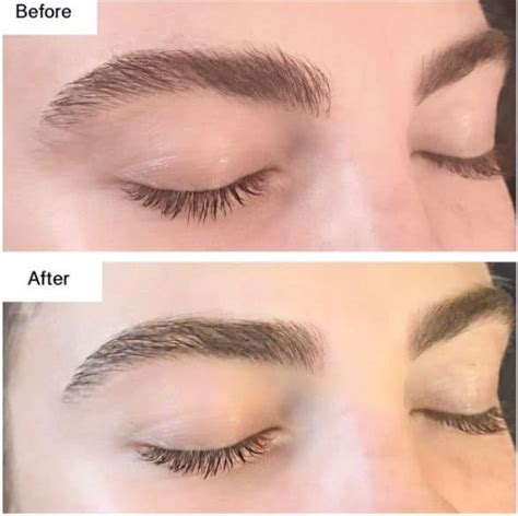cosmetic eyebrow service in malvern melbourne vic