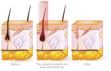 how laser diode works choose diode laser hair removal machine dimyth