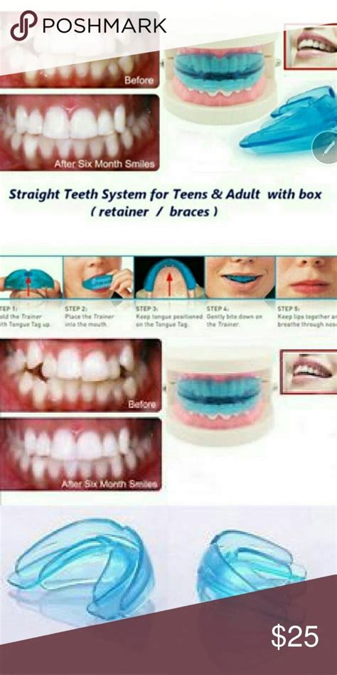 How To Straighten Teeth At Home by 25 Best Ideas About Teeth Straightening On