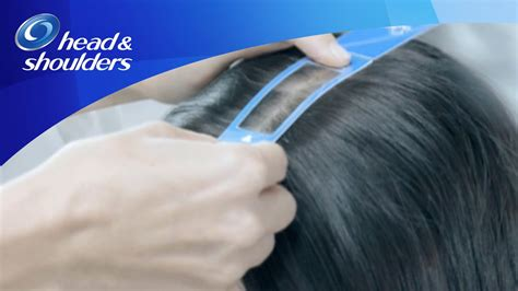 Can Using A Hair Dryer Cause Dandruff shoulders helps reduce hair fall caused by dandruff and shoulders shoo
