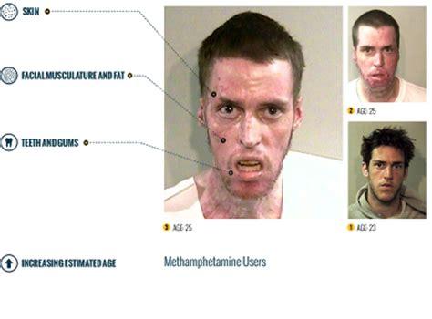 Meth Detox Time by Astridestella Info Addiction The Horror Of Meth