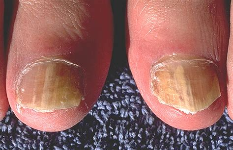 fungal nail infection causes symptoms treatment