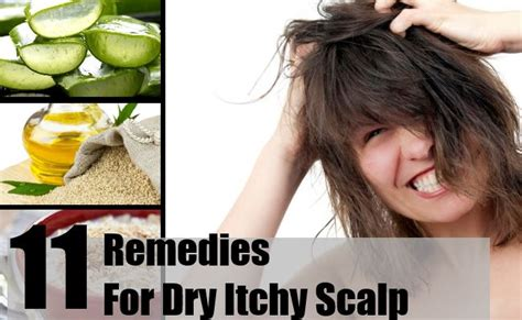11 home remedies for itchy scalp treatments