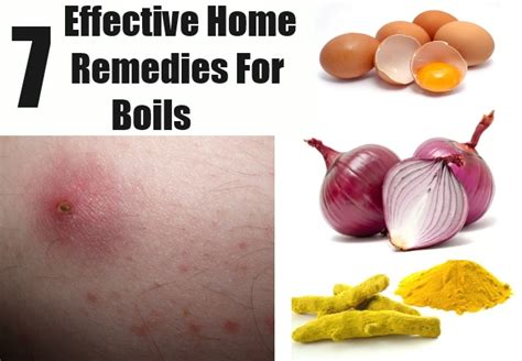 7 effective home remedies for boils remedies for