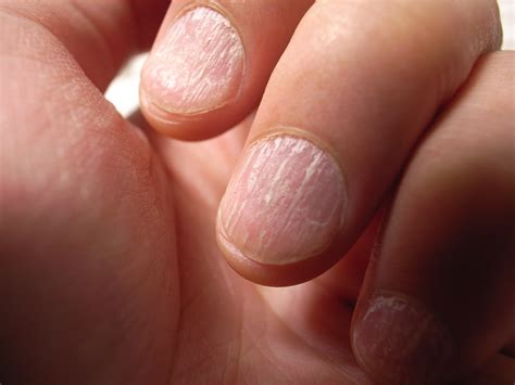 Nail Problems by What These Common Nail Problems Could Be Telling You About