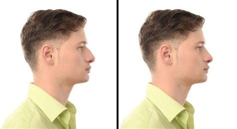 si鑒e v駘o avant rhinoplastie chirurgie en augmentation chez les hommes