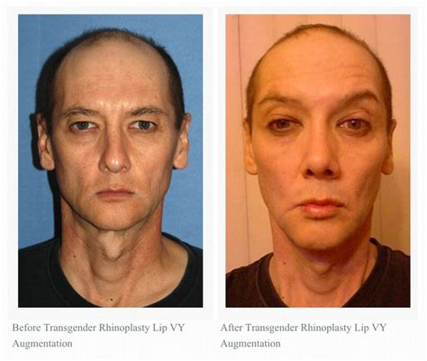facial masculinization surgery 17 best images about transgender facial feminization on