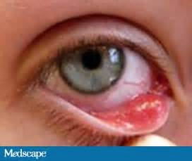Viral Diseases In Plants And Animals - eye infections ocular infections