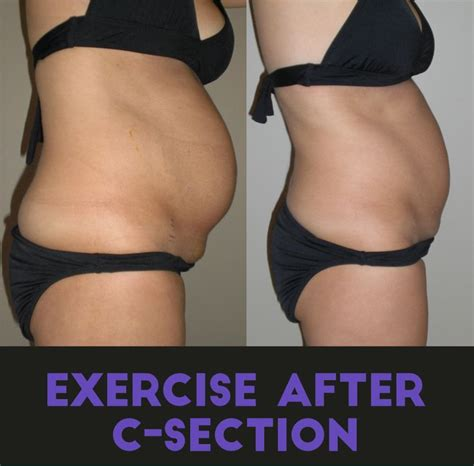 exercises after c section reduce tummy common c section questions how do i get rid of the shelf
