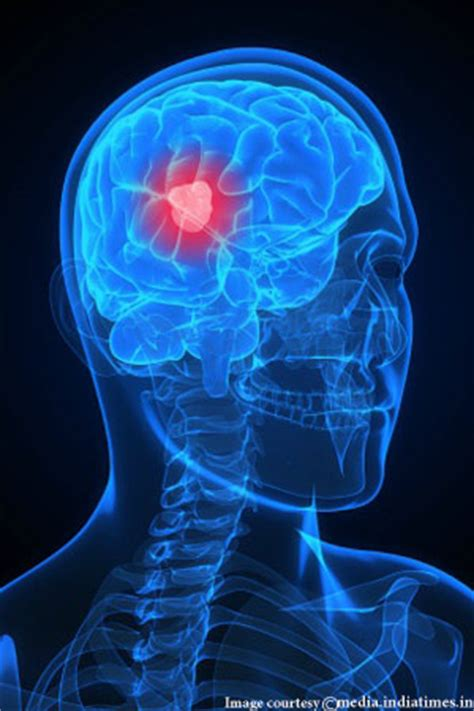 interesting facts  brain cancer cancer