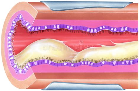 free design for phlet lungs bronchial mucus causing airway obstruction and