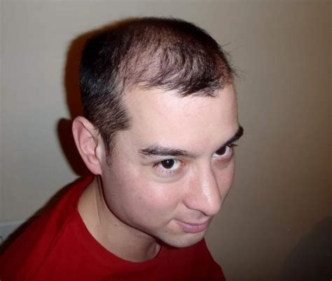 hair is wirey men thin wiry facial hair thin wiry facial hair hair loss