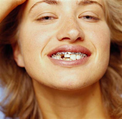 wann zahn ziehen weisheitsz 228 hne bei schmerzen entfernen lassen welt