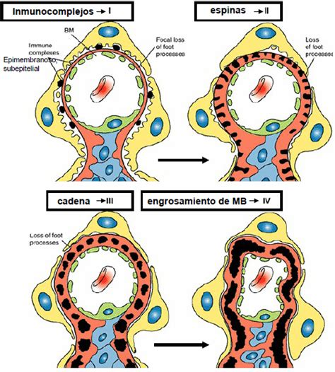 enfermedad de cadenas ligeras pdf patolog 237 a glomerulopat 205 as
