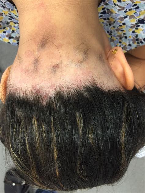 ophiasis pattern hair loss contour dermatology ophiasis pattern of halo loss
