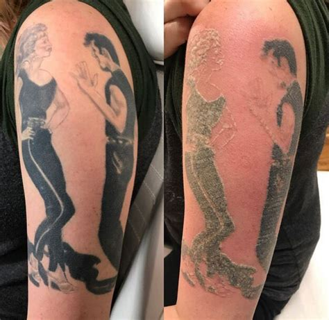 how does skin look after tattoo removal before and after laser removal photos